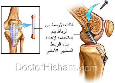 جراحة الرباط الصليبي الأمامي