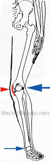الارتطام بالركبة من الجهة الخارجية