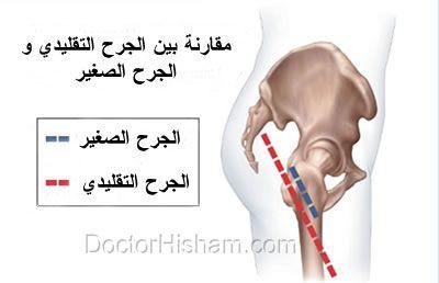 تركيب مفصل الفخذ الصناعي من خلال جرح صغير
