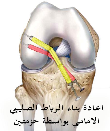 جراحة الرباط الصليبي الأمامي بواسطة حزمتين من الأوتار