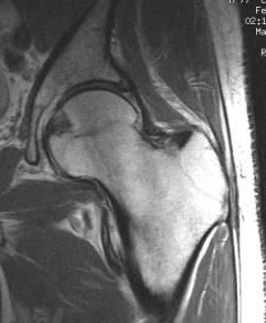 صورة بالرنين النغناطيسي لمفصل الفخذ تبين العظام و الأنسجة المحيطة بها