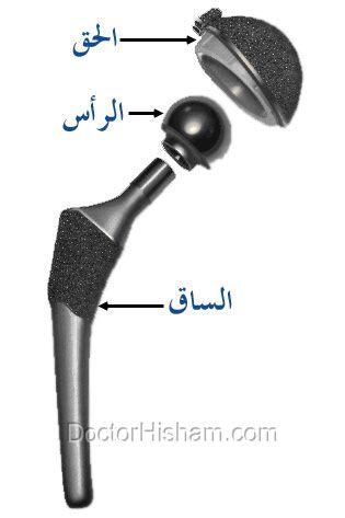 تركيب مفصل الفخذ الصناعي