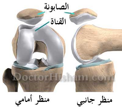 34a759948 خشونة و تآكل غضاريف الصابونة (الرضفة) - عيادة الركبة و الفخذ