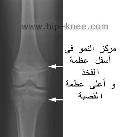 593d62a31bc71 إصابة مركز نمو العظام - عيادة الركبة و الفخذ