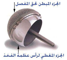 تغطية سطح مفصل الفخذ