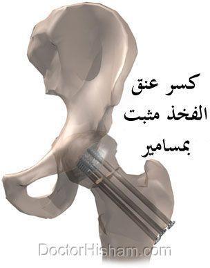 كسور عنق عظمة الفخذ