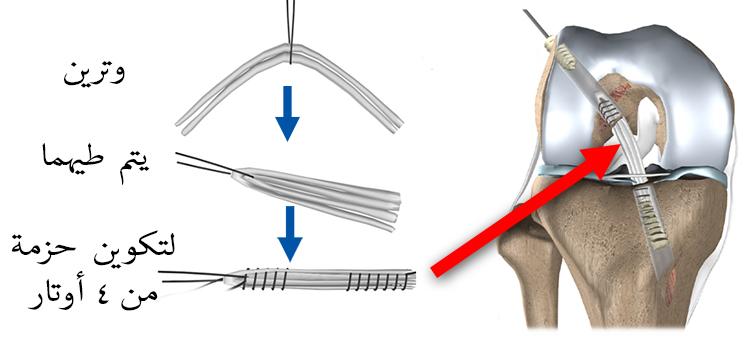 إعادة بناء الرباط الصليبي الامامي بواسطة حزمة واحدة من الأوتار