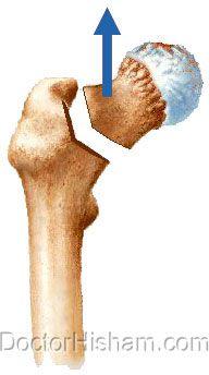 إزالة رأس عظمة الفخذ