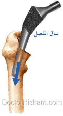 تركيب ساق المفصل الصناعي