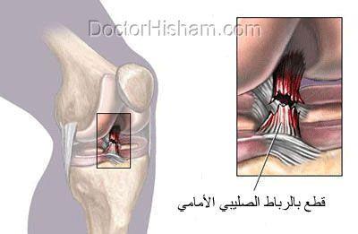 قطع الرباط الصليبي الامامي يؤدي الى خشونة بالركبة و قطع بالغضاريف الهلالية