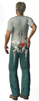 موضع الألم فى حالات التهابالمفصل العجزي الحرقفي