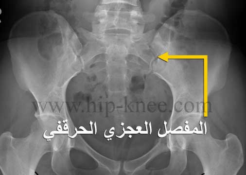 أشعة تظهر المفصل العجزي الحرقفي