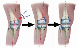 تصليح-تقوس-الساق-من-خلال-مراكز-النمو