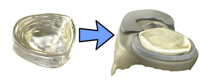 meniscus-implant