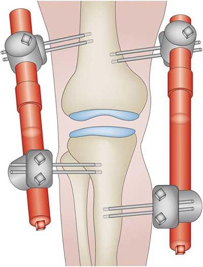 علاج خشونة الركبة بالتباعد