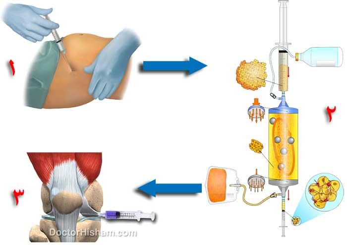 حقن الدهون فى الركبة لعلاج خشونة المفاصل