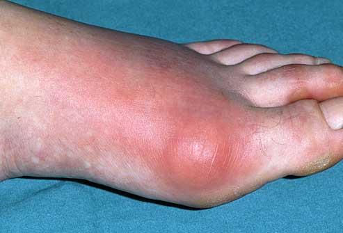النقرس ما هو أسبابه تشخيصة وطرق علاجة عيادة الركبة و الفخذ