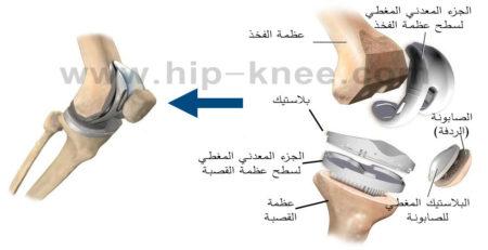 أجزاء مفصل الركبة الصناعي