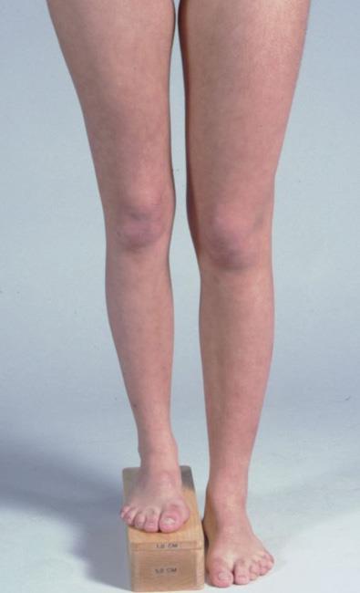 استخدام القوالب الخشبية لقياس فرق الطول بين الساقين.