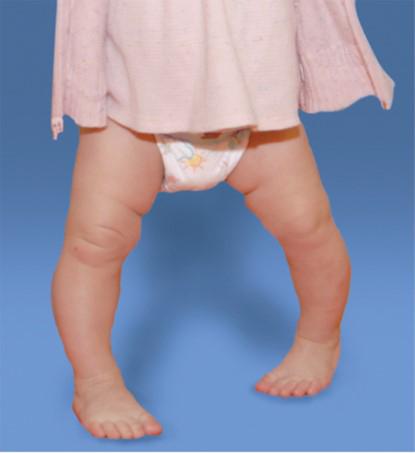 تقوس الساقين في الأطفال