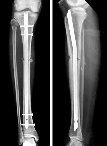 كسر الساق القصبة عيادة الركبة و الفخذ