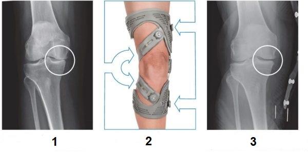 أشعة توضح أثر الركبة الطبية لإعادة توزيع الوزن على ركبة مريض مصاب بالتهاب المفاصل التنكسي