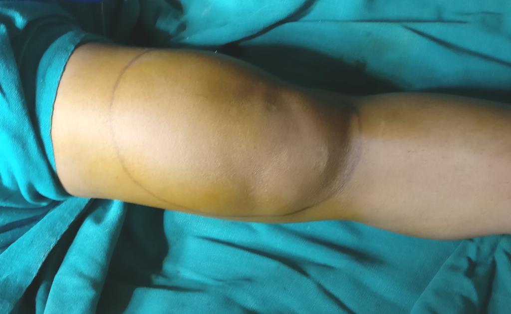 التورم الناتج عن التهاب الغشاء الزلالي الزغابي العقدي المتصبغ في الركبة