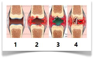 تطور الإصابة التدريجي من التورم حتى التدهور التام للمفصل