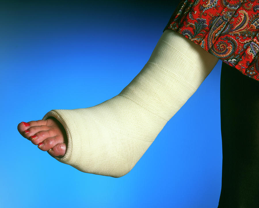 علاج الكسر بالجبس الطبي