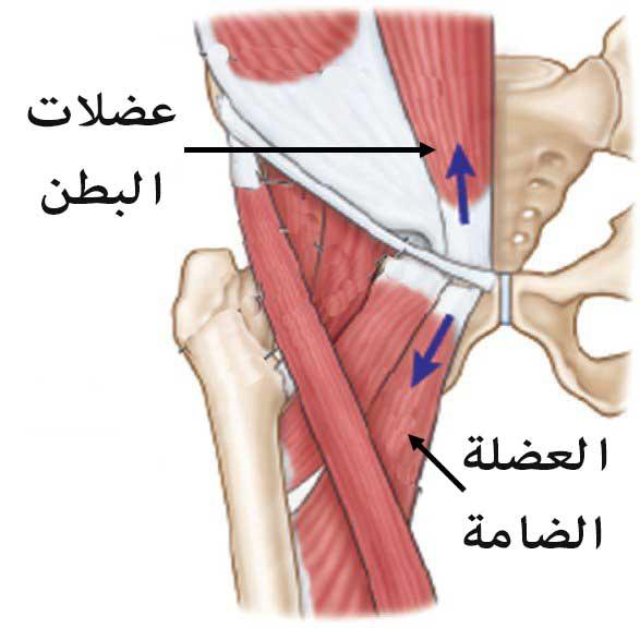 الإصابة تحدث نتيجة تمزق الانسجة عند موضع التقاء البطن بالفخذ