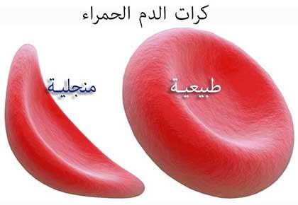 الخلايا المنجلية نتيجة تشوه كرات الدم الحمراء