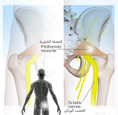 العضلة الكمثرية والعصب الوركي