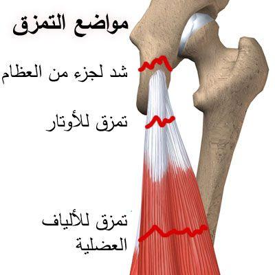 تمزق عضلات الفخد الخلفية