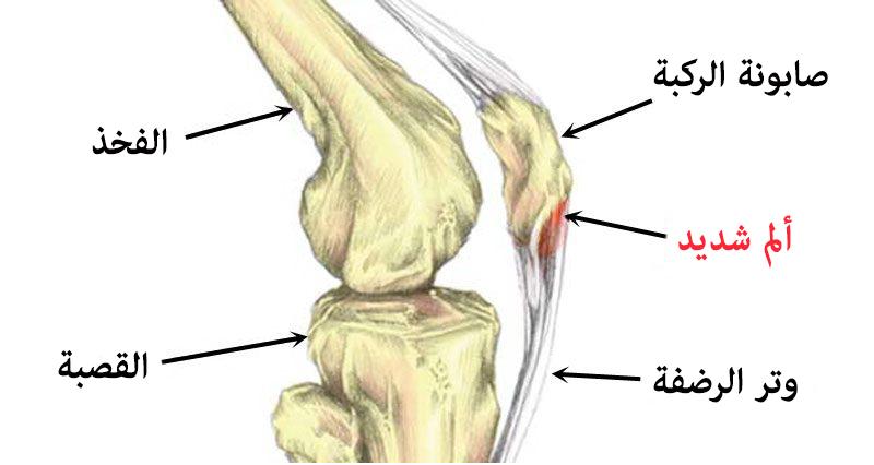 التهاب وتر الرضفة (الوتر الرضفي) - عيادة الركبة و الفخذ ...