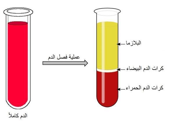 عملية فصل الدم باستخدام البلازما الغنية بالصفائح الدموية