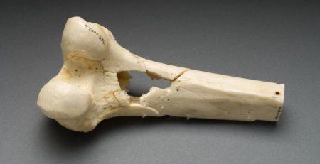 نقل العظام