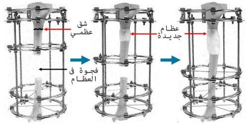 نقل العظام بواسطة النثبت الخارجي (اليزاروف)