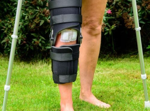 ركبة طبية داعمة وعكازات لمساعدة المريض على المشي بعد عملية الرباط الصليبي