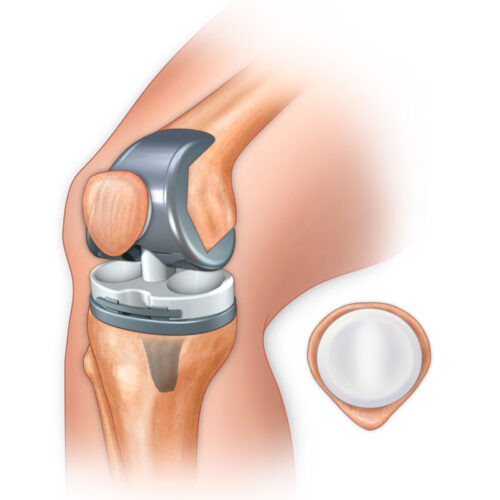 تركيب مفصل ركبة صناعي
