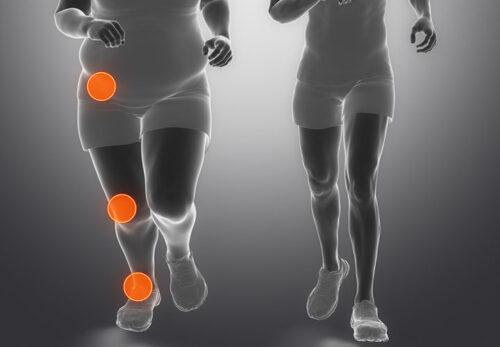 زيادة الوزن تؤدي إلى زيادة التحميل على المفاصل وتتسبب في حدوث خشونة في الركبة