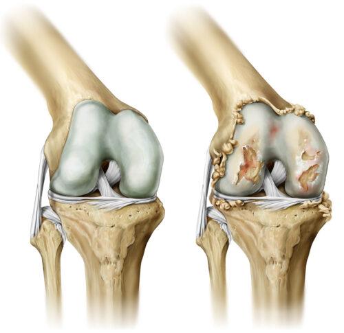 الفرق بين الركبة السليمة والركبة المصابة بالخشونة