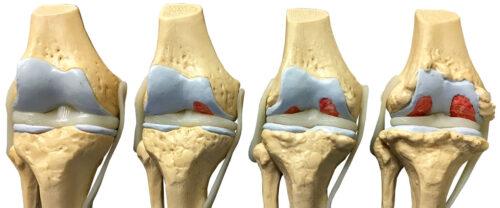 مراحل خشونة الركبة